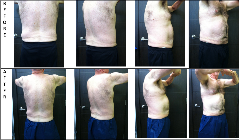 CoolSculpting Results Boutique Aesthetics Bellevue WA