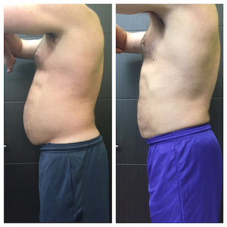 Coolsculpting for Men Bellevue